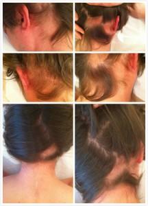 alopecia f